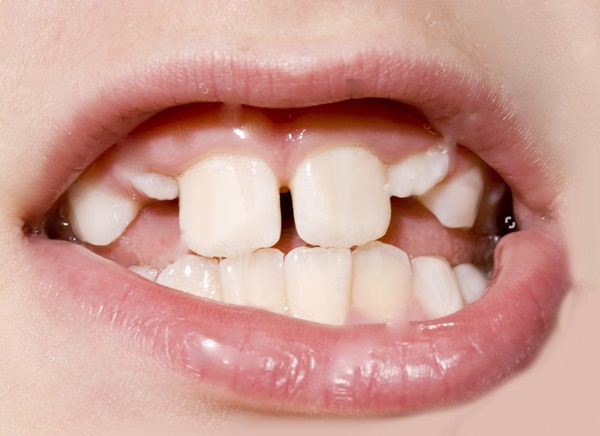 """7 vấn đề """"Vô Cùng Quan Trọng"""" về niềng răng trẻ em bạn cần biết 4"""