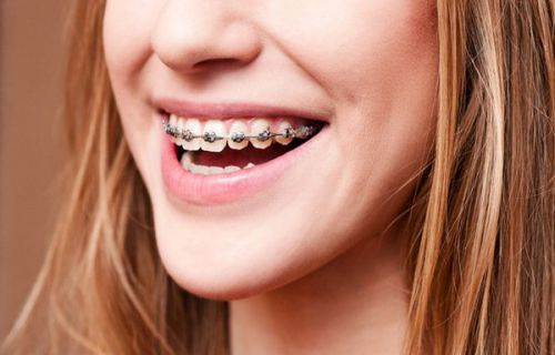"""Niềng răng trong độ tuổi nào đem lại """"Hiệu Quả Tối Ưu""""? 2"""