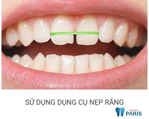 cách chữa răng hô nhanh nhất