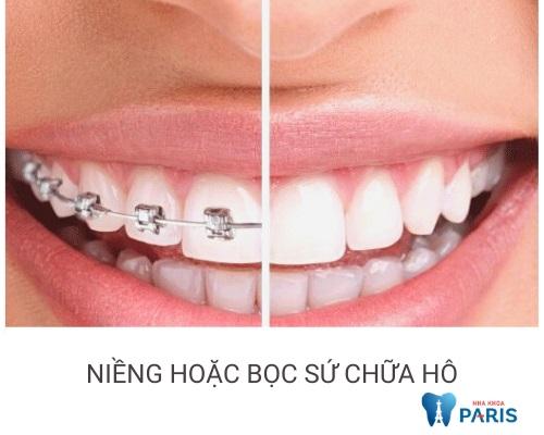 cách chữa răng hô tại nhà