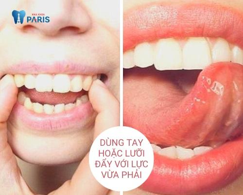 cách làm răng hết hô tại nhà