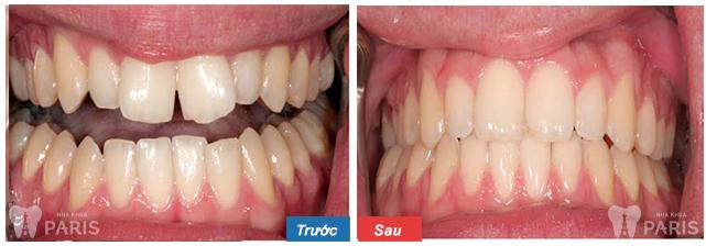các loại niềng răng không mắc cài