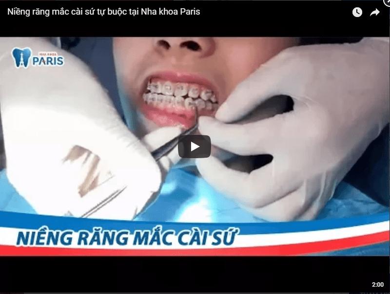 Top 4 ƯU ĐIỂM VƯỢT TRỘI của niềng răng mắc cài sứ 2