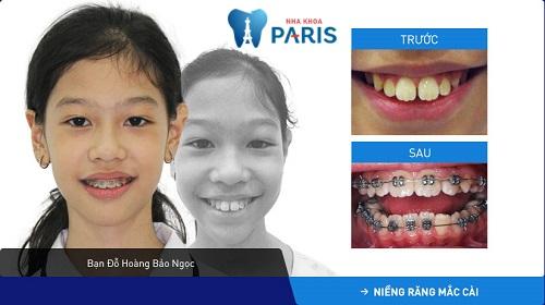 niềng răng trước và sau 2