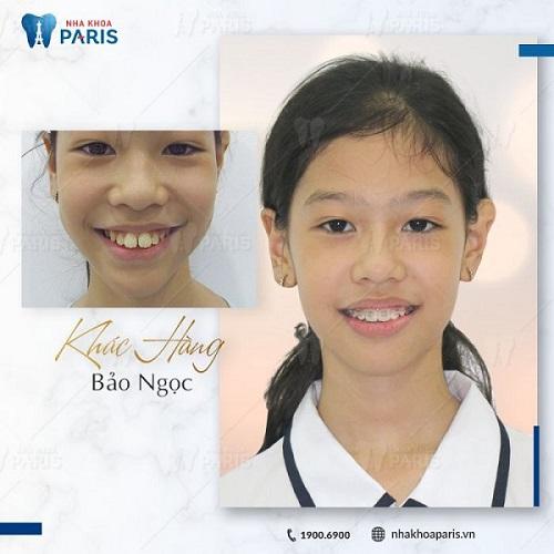 ảnh trước và sau khi niềng răng hô 2
