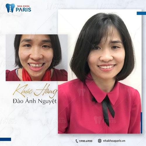 ảnh trước và sau khi niềng răng hô 3
