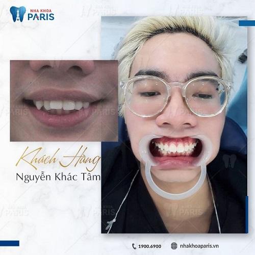 ảnh trước và sau khi niềng răng hô 4