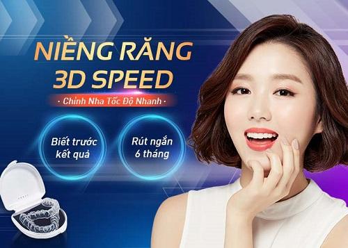 Niềng răng là gì? công nghệ niềng 3d speed