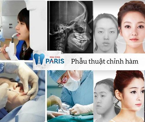 Kinh nghiệm phẫu thuật hàm hô 4