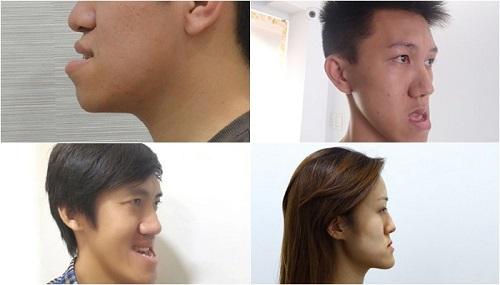 hàm răng xấu nhất thế giới 2