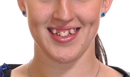 hàm răng xấu nhất thế giới, răng xấu phải làm sao