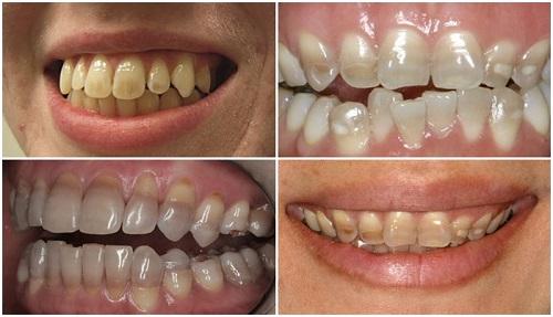 hàm răng xấu nhất thế giới, răng xấu phải làm sao 1