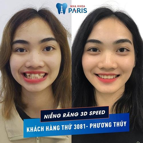 niềng răng có giúp mặt thon gọn