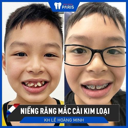 niềng răng thay đổi khuôn mặt 1
