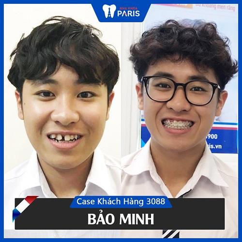 niềng răng thay đổi khuôn mặt 3