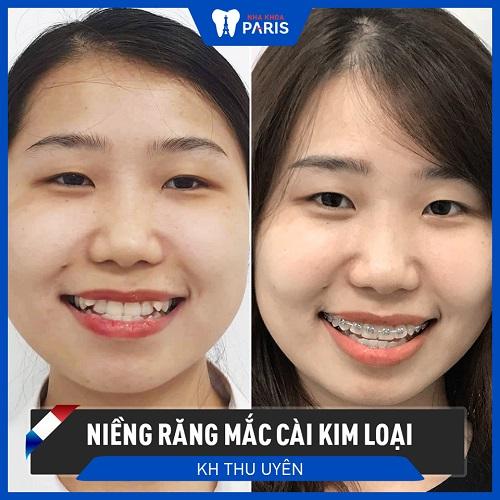 niềng răng thay đổi khuôn mặt 2