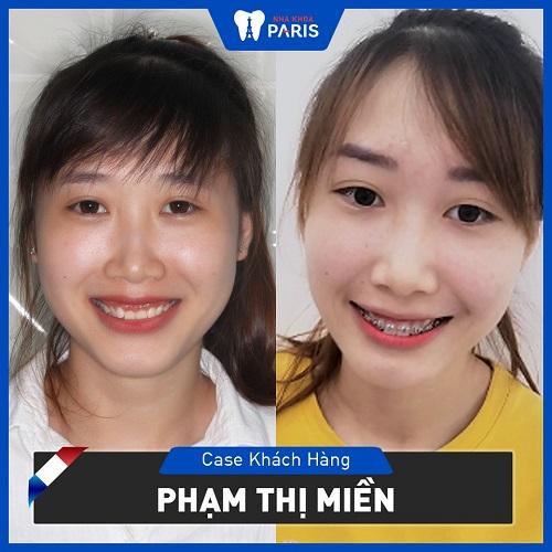 niềng răng thay đổi khuôn mặt 4
