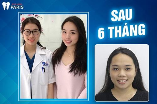 niềng răng thay đổi khuôn mặt như thế nào