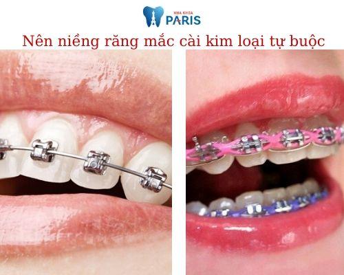 niềng răng mắc cài kim loại tự buộc là gì