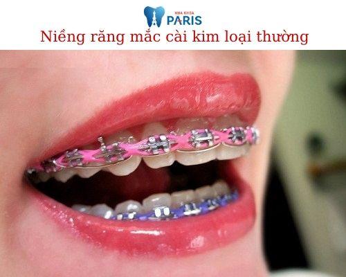 Niềng răng mắc cài kim loại giá bao nhiêu