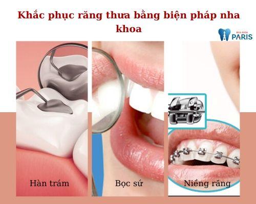 răng thưa hàm dưới tướng số
