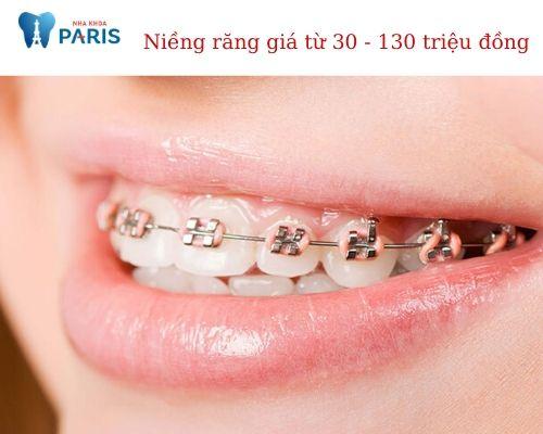 Niềng răng giá bao nhiêu tiền